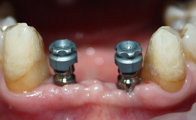 Протезирование зубов при пародонтозе: особенности лечения и восстановления