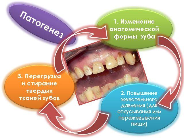 Стираемость зубов: лечение патологических форм и особенности упрочнения эмалей