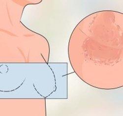 Чешется и болит грудная железа: причины зуда у женщин
