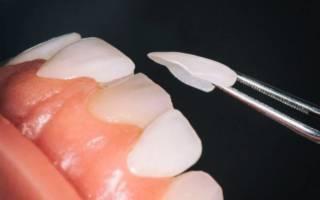 Как выровнять зубы без брекетов - способы, эффективность