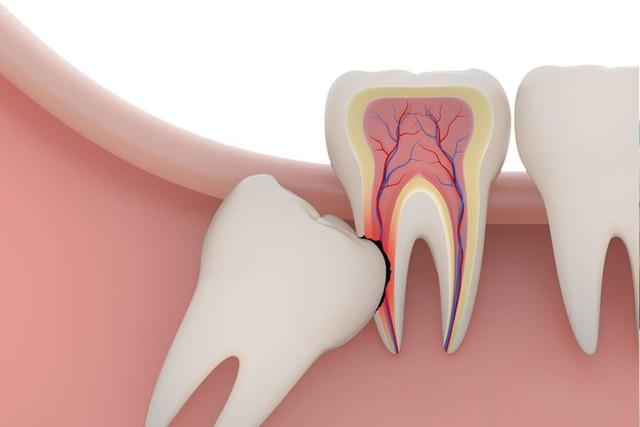 Зуб мудрости болит: что делать в домашних условиях, рецепты, препараты