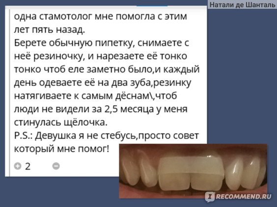 Звезды с щербинкой между зубами — фото, комментарии, видео