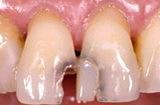 Лучший материал для пломбирования зубов в 2020 году