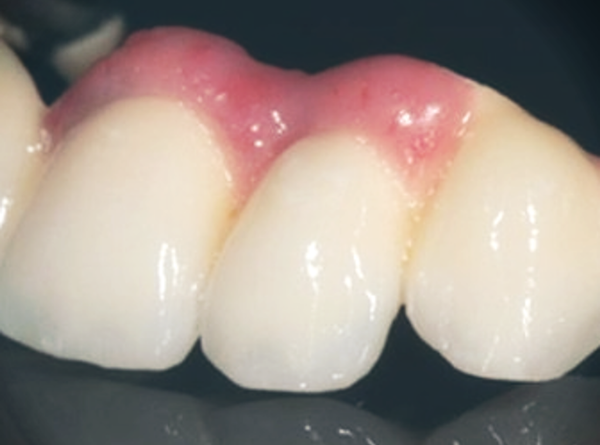 Может ли искусственная десна стать достойной альтернативой костной пластике