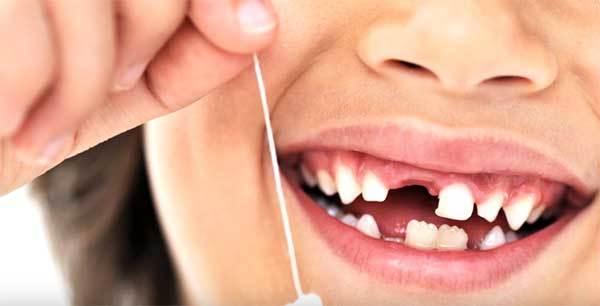 Почему у ребенка не растут постоянные зубы после выпадения молочных?