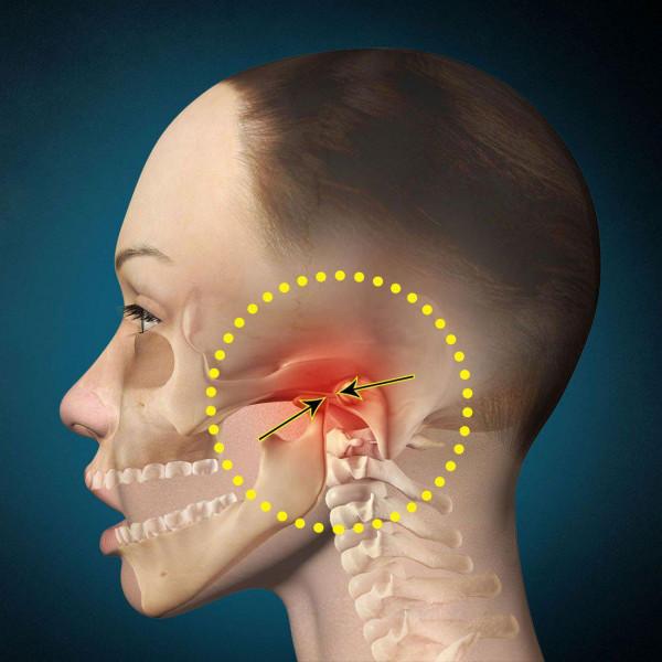 Три главных признака подвывиха челюсти и как исправить ситуацию