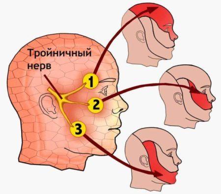 Неврит и невралгия тройничного нерва: симптомы, диагностика и лечение