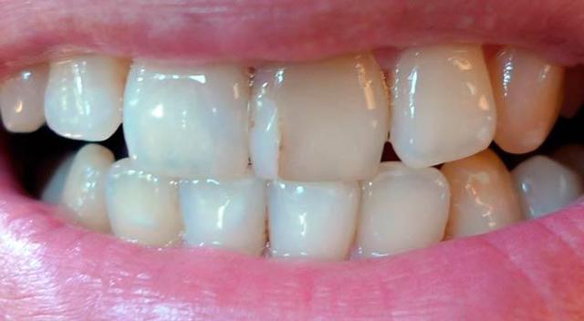 Сильно потемнела коронка зуба: причины, осложнения, лечение