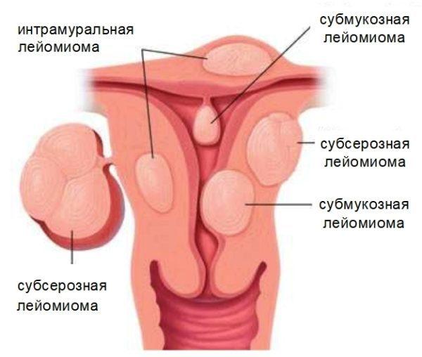 Множественная миома матки: лечение, чем опасна, размеры и удаление