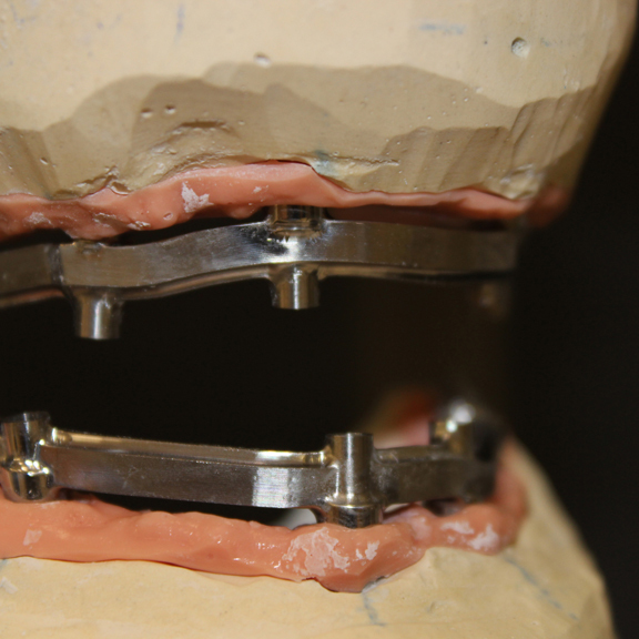 Все зубы за 1 день: разница протезирования all-on-4 и all-on-6