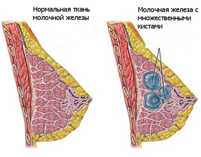 Что такое фиброзно-жировая, фиброзно-аденозная и фиброзно-аденоматозная мастопатия
