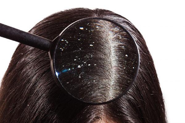 Виды перхоти на голове, как выглядит перхоть под микроскопом,сухая,жирная,смешанная,трубчатая перхоть,себорейный дерматит