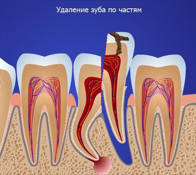 Как удаляют осколок (остаток) зуба в десне: удаление корня зуба