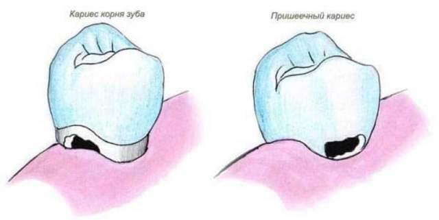 Кариес корня зуба: 5 симптомов, причины и способы лечения болезни