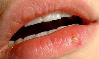 Оксолиновая мазь при герпесе на губах: показания и противопоказания