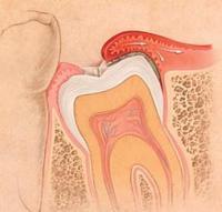 Растет зуб мудрости опухла щека что делать