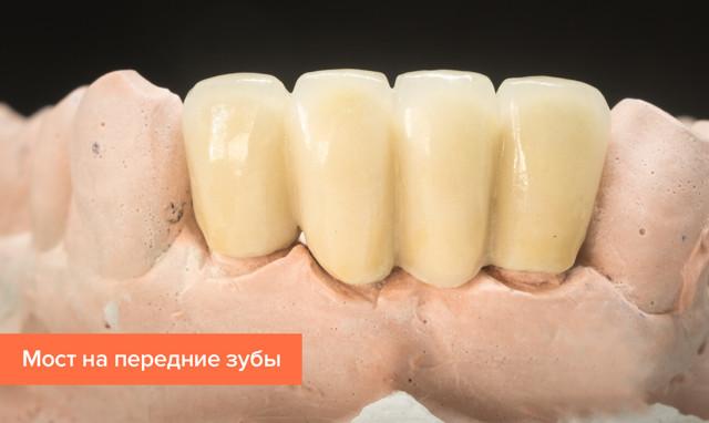 Лечение передних зубов – методы, фото до и после, отзывы