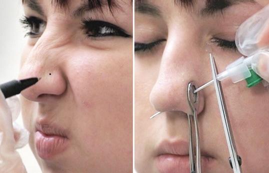 Пирсинг носа: как проводится процедура, возможные осложнения, правильный уход