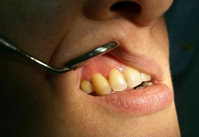 Как устранить симптомы аллергии от зубных протезов, видео