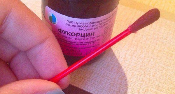 Фукорцин при стоматите у детей и взрослых: инструкция по применению