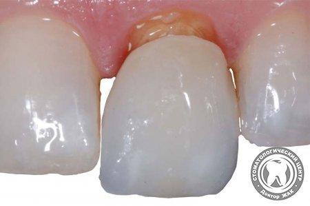 Отпала коронка: что делать? Советы специалистов как вернуть эстетику зубов
