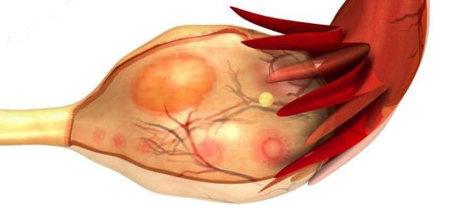 Киста желтого тела яичника: симптомы, причины, признаки, как лечить