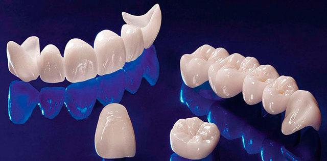 Металлокерамическая или циркониевая коронки на зуб, что выбрать?