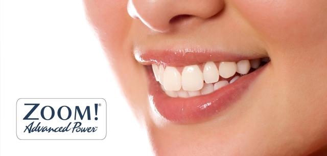 Результаты отбеливания zoom: методы, фото зубов до и после, отзывы
