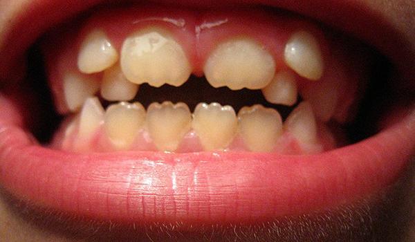 Профилактика заболеваний твердых тканей зубов — кариес и некариозные поражения