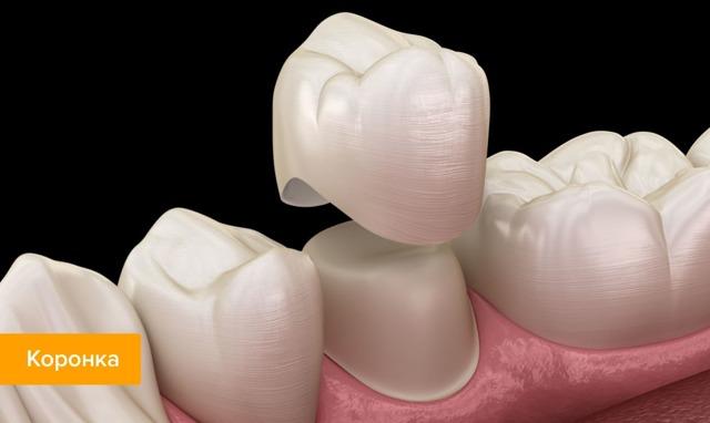 Регенерация зубов: миф или реальность, как вырастить новый зуб