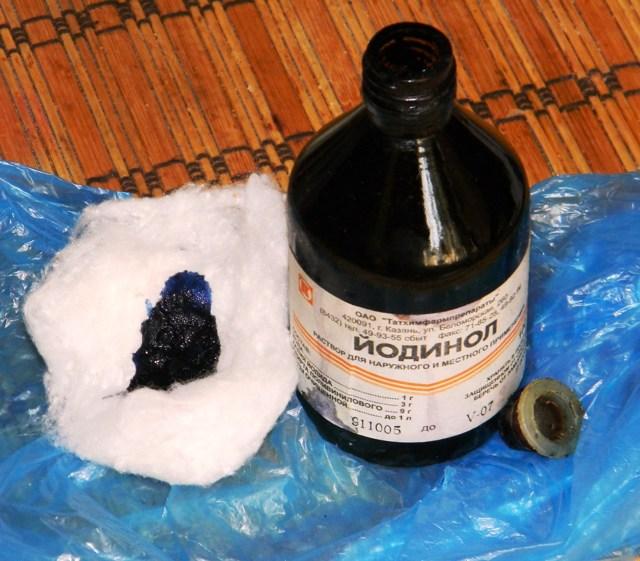 Йодинол при стоматите в качестве антисептического средства