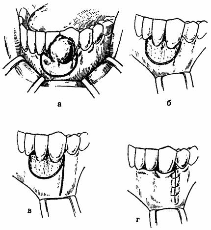 Эпулис на десне: определение, виды, фото и способы лечения