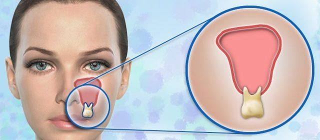 Перфорация гайморовой пазухи при удалении зуба: причины и способы лечения