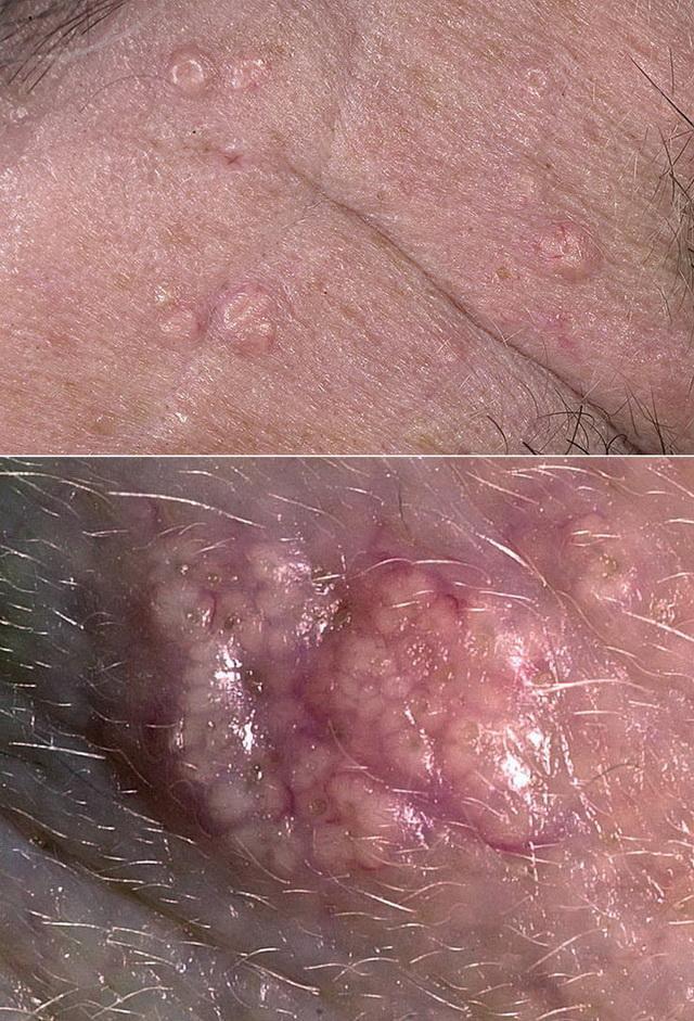 Гиперплазия сальных желез – о необходимости удаления и методах лечения дефекта