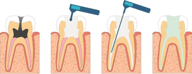 Лечение пульпита зуба у детей: пульпит молочных и постоянных зубов