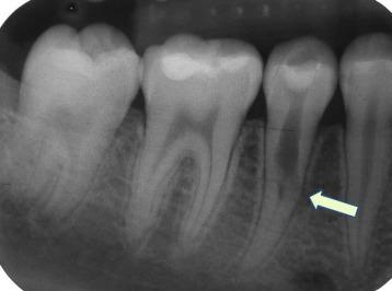 Лечение обширной внешней и внутренней резорбции корня при помощи mta