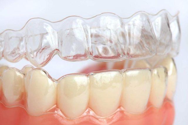 Капы для выравнивания зубов: разновидности накладок и преимущества лечения