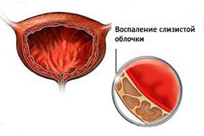 Кровь при мочеиспускании у женщин: причины и лечение