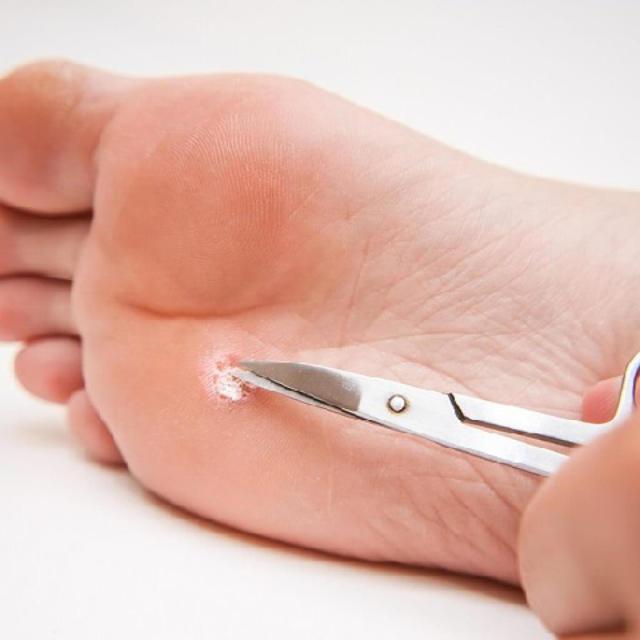 Удаление бородавок хирургическим путем: плюсы и минусы метода