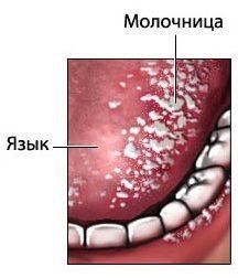 Стоматит на языке: лечение в домашних условиях народными средствами