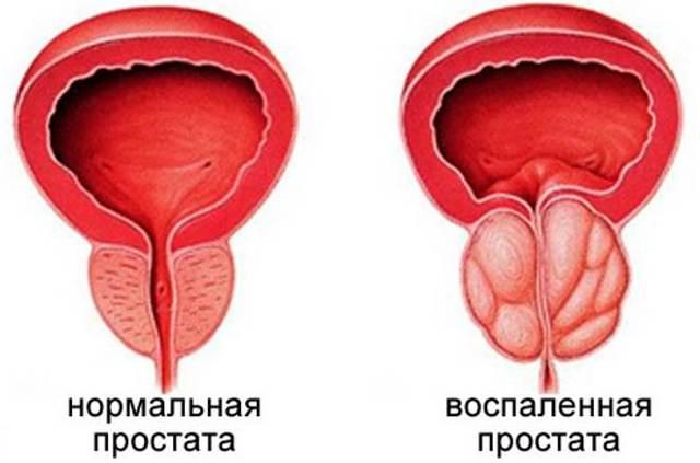 Лонгидаза уколы: показания к применению, как колоть, аналоги