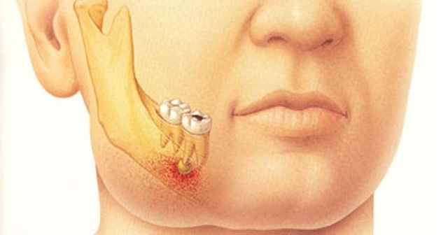 Флегмона полости рта: причины возникновения, симптомы, лечение, профилактика