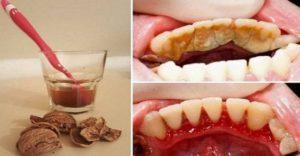 Скорлупа грецкого ореха от зубного камня: отзыв, рецепт применения