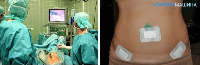 Лапароскопия маточных труб: показания к операции и ее проведение
