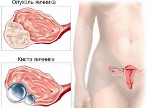 Могут ли идти месячные при внематочной беременности