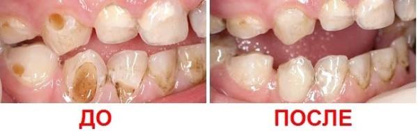Клиновидный дефект зубов: лечение, методики для ранней и запущенной формы