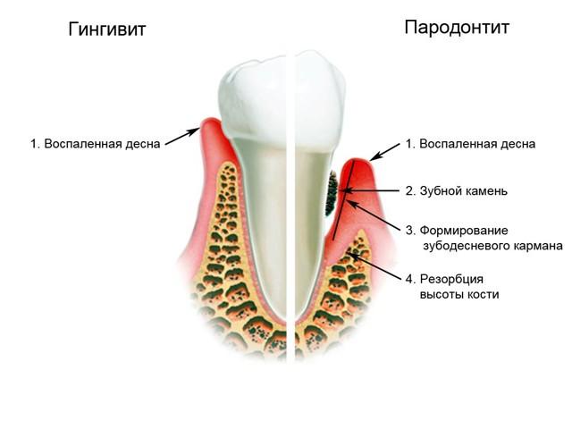 Пародонтит: симптомы, лечение народными средствами в домашних условиях