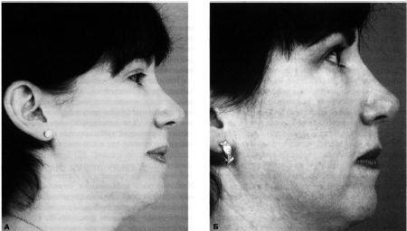 Опущенный или приподнятый кончик носа: причины, симптомы, диагностика и лечение