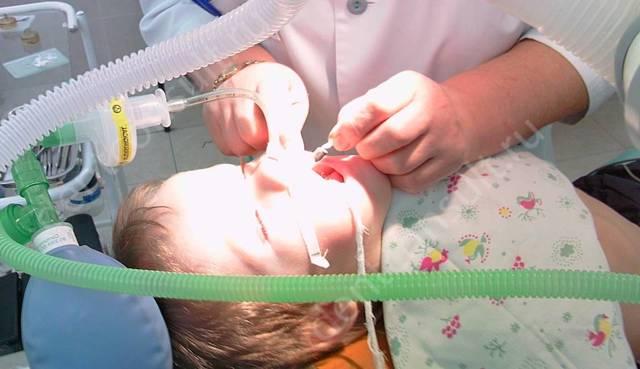 Наркоз в детской стоматологии: особенности применения и потенциальные риски