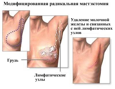 Удаление молочной железы при раке: операция, послеоперационный период и последствия